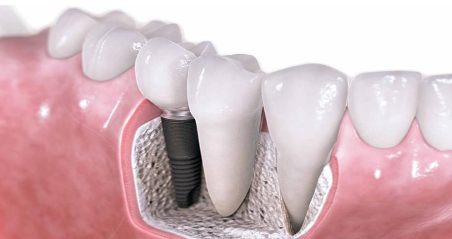 Kdaj so zobni implantati dobra odločitev